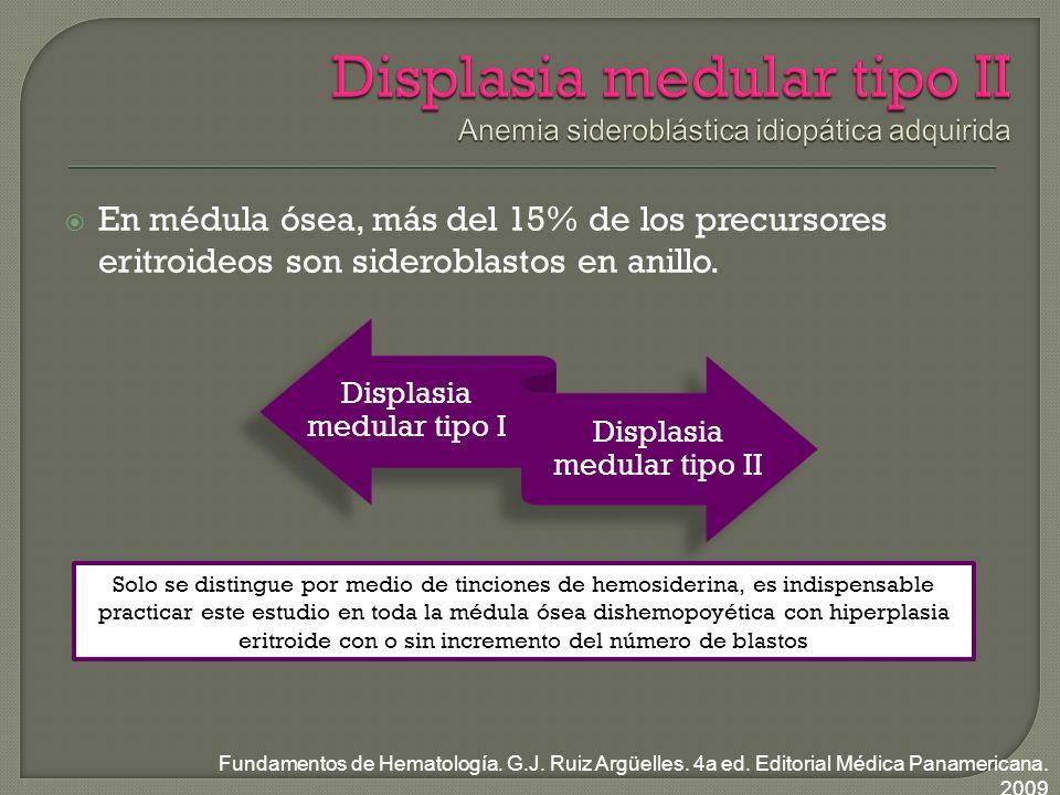 Displasia medular tipo II Anemia sideroblástica idiopática adquirida