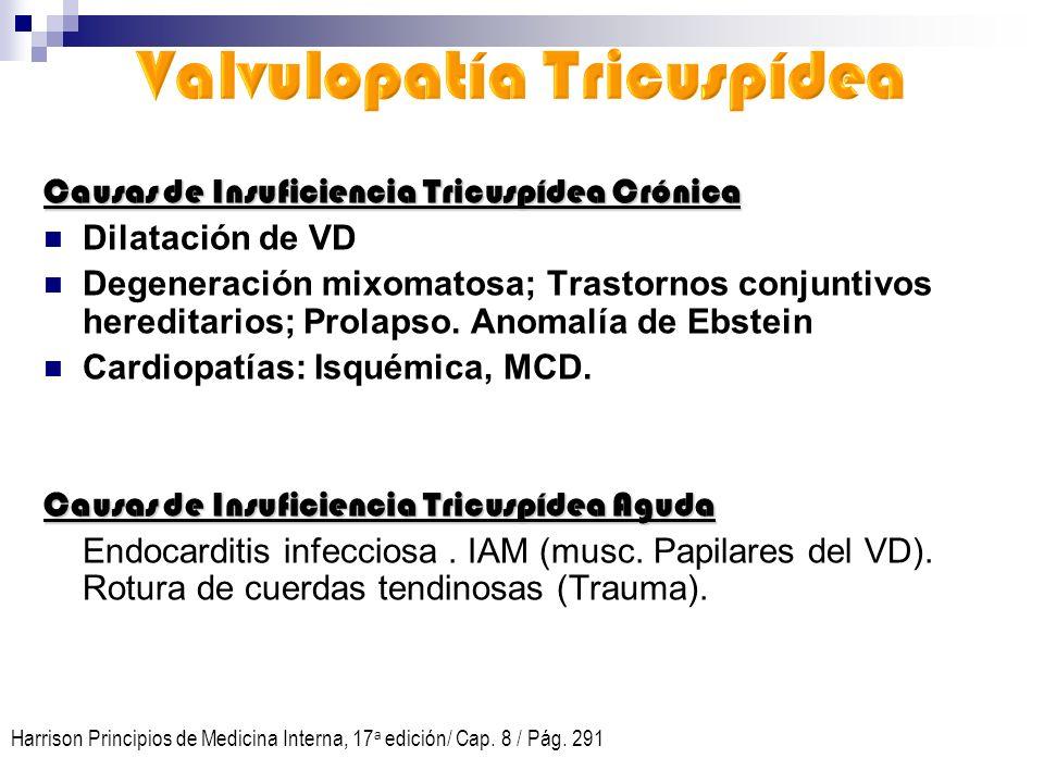 Valvulopatía Tricuspídea