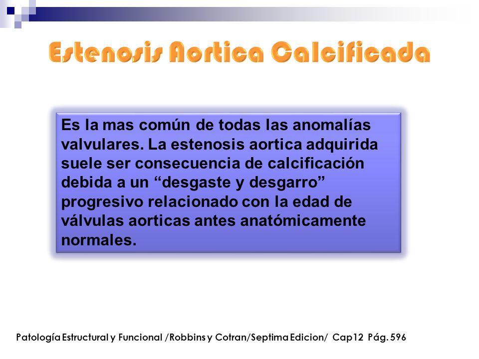 Estenosis Aortica Calcificada