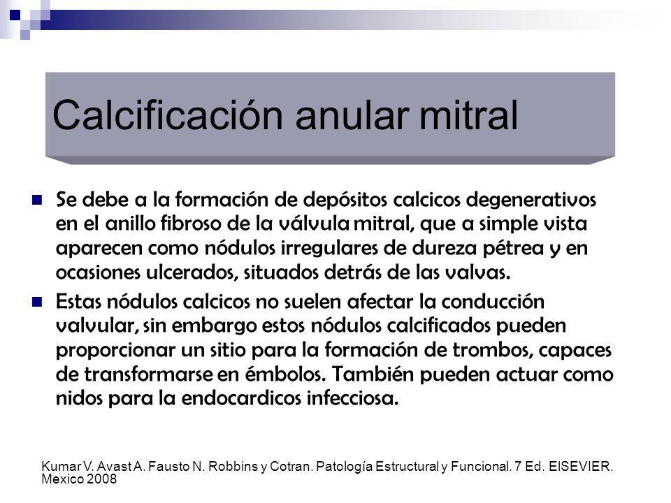 Calcificación anular mitral