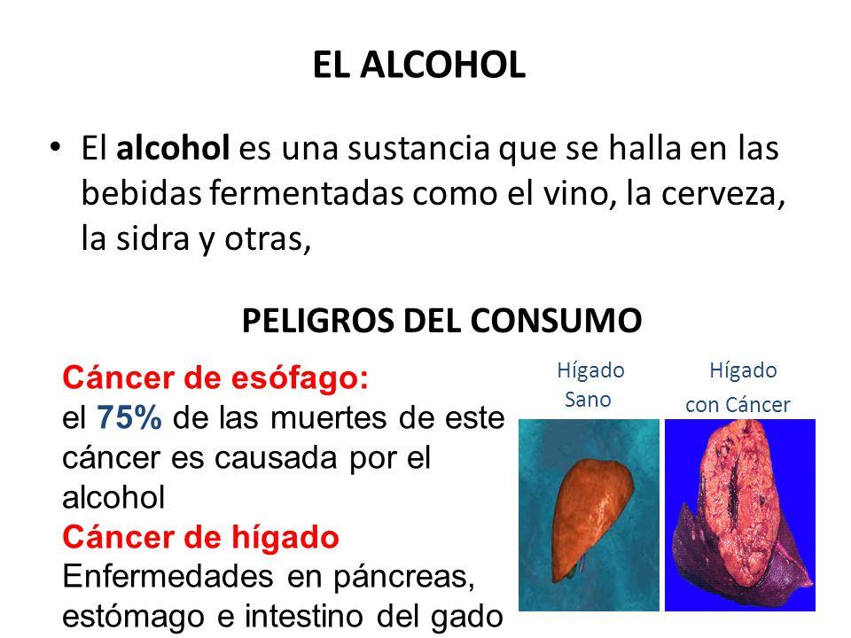 Hígado con Cáncer EL ALCOHOL