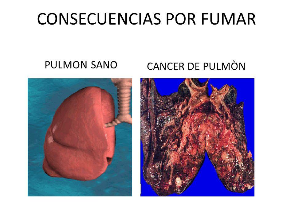 CONSECUENCIAS POR FUMAR