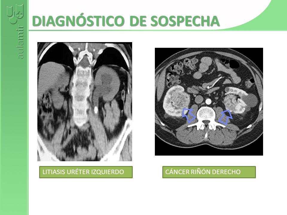 DIAGNÓSTICO DE SOSPECHA