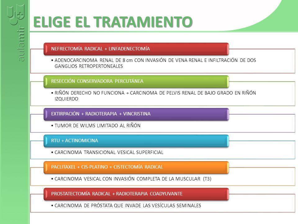 ELIGE EL TRATAMIENTO NEFRECTOMÍA RADICAL + LINFADENECTOMÍA