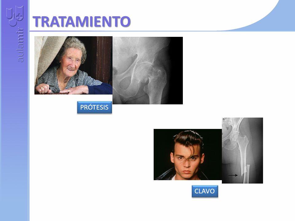 TRATAMIENTO PRÓTESIS CLAVO