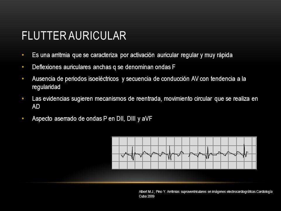 Flutter auricular Es una arritmia que se caracteriza por activación auricular regular y muy rápida.