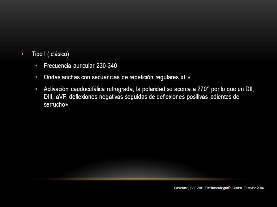 Frecuencia auricular 230-340