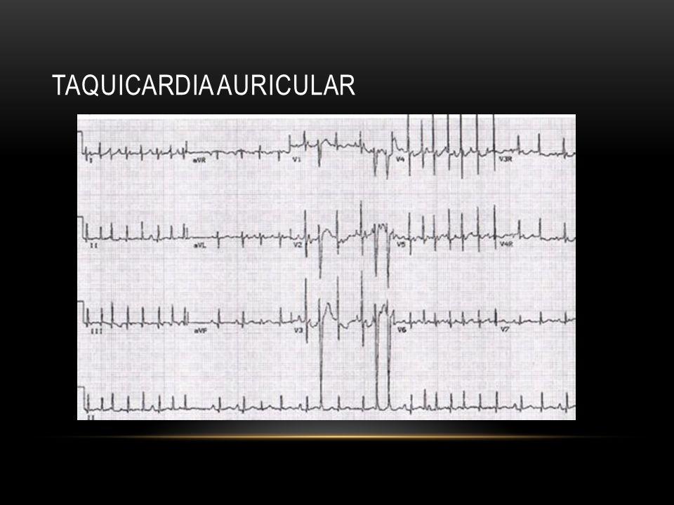 Taquicardia auricular