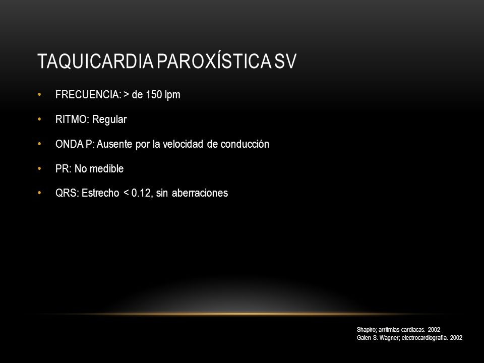 Taquicardia paroxística SV