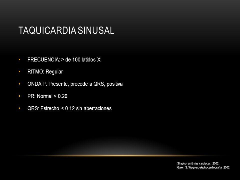Taquicardia sinusal FRECUENCIA: > de 100 latidos X' RITMO: Regular