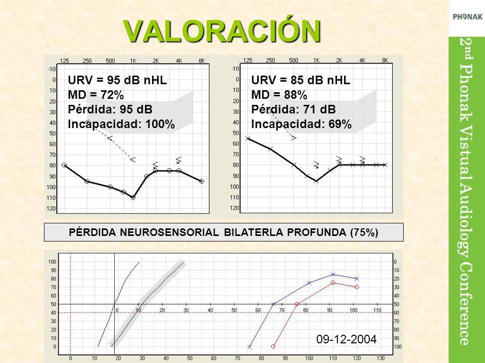 PÉRDIDA NEUROSENSORIAL BILATERLA PROFUNDA (75%)