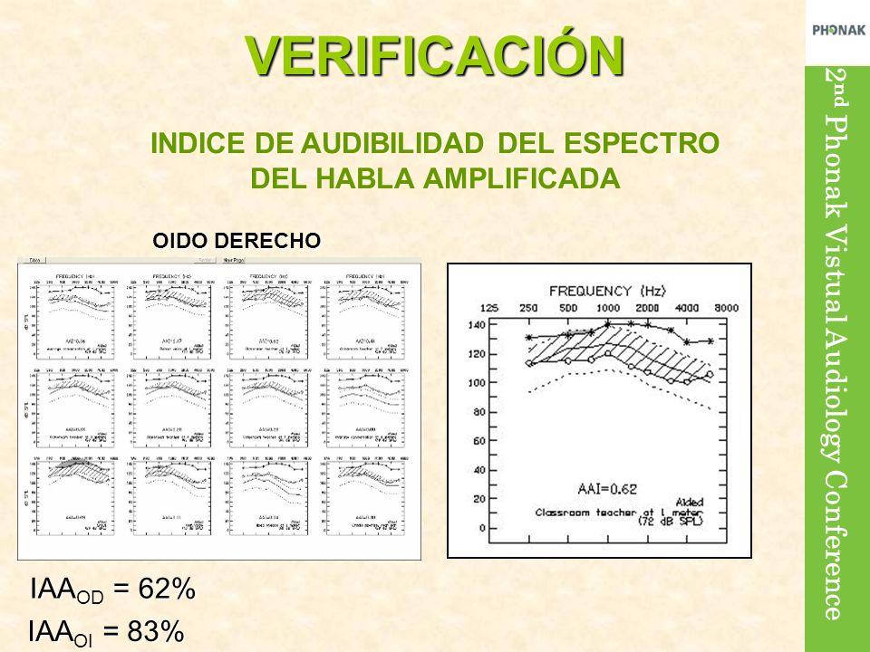 INDICE DE AUDIBILIDAD DEL ESPECTRO