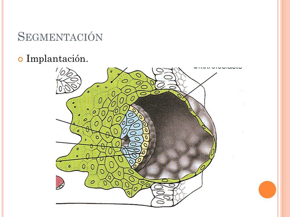 Segmentación Implantación.