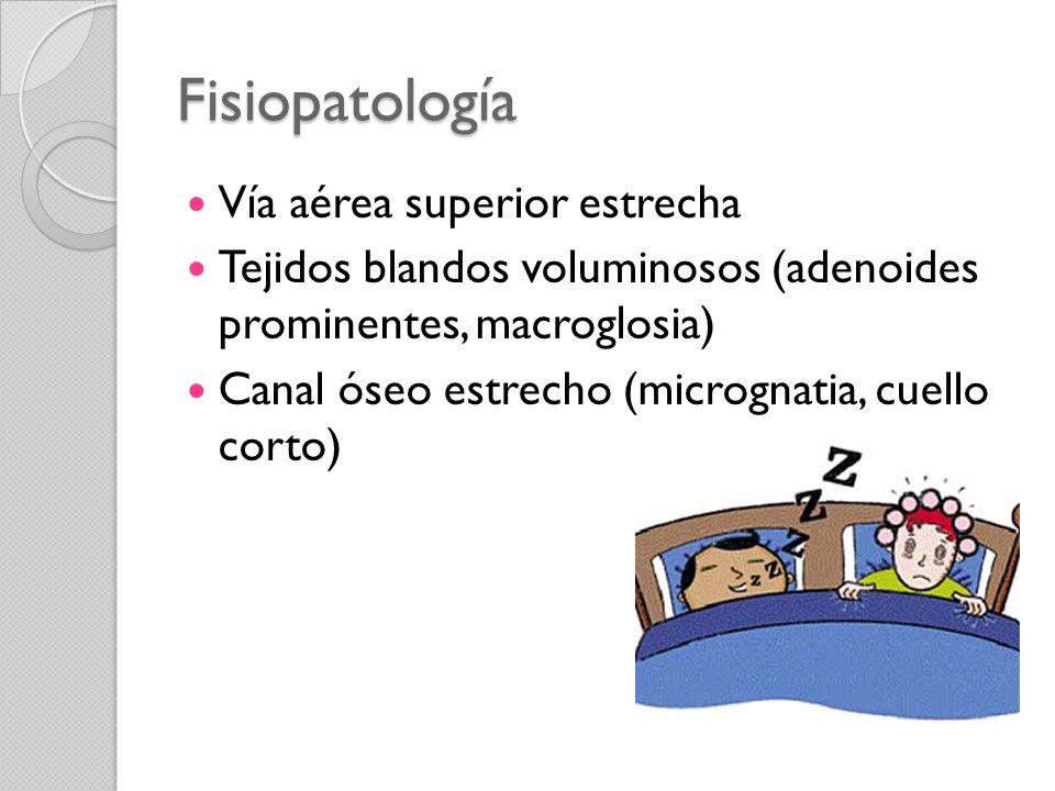 Fisiopatología Vía aérea superior estrecha