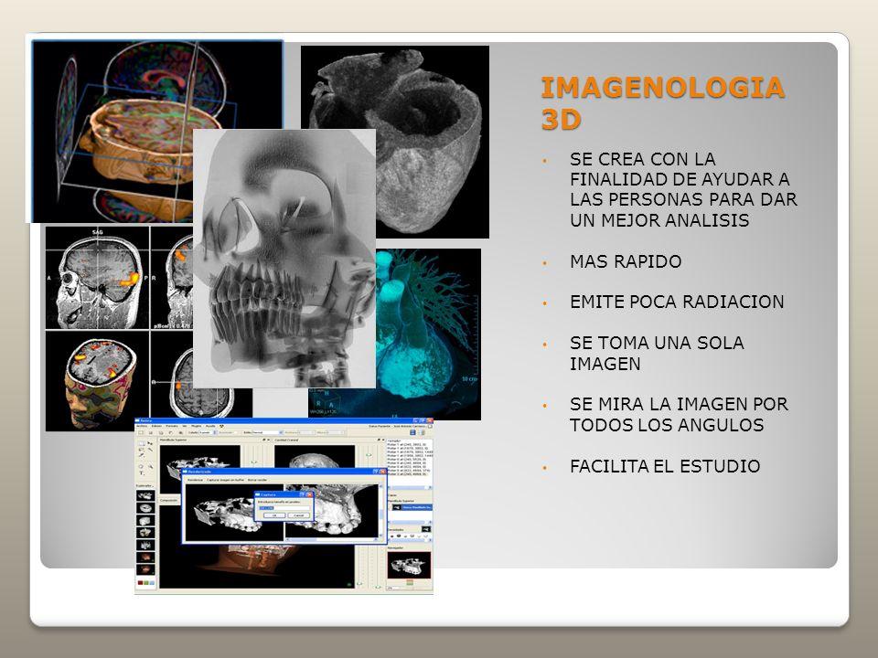 IMAGENOLOGIA 3D SE CREA CON LA FINALIDAD DE AYUDAR A LAS PERSONAS PARA DAR UN MEJOR ANALISIS. MAS RAPIDO.