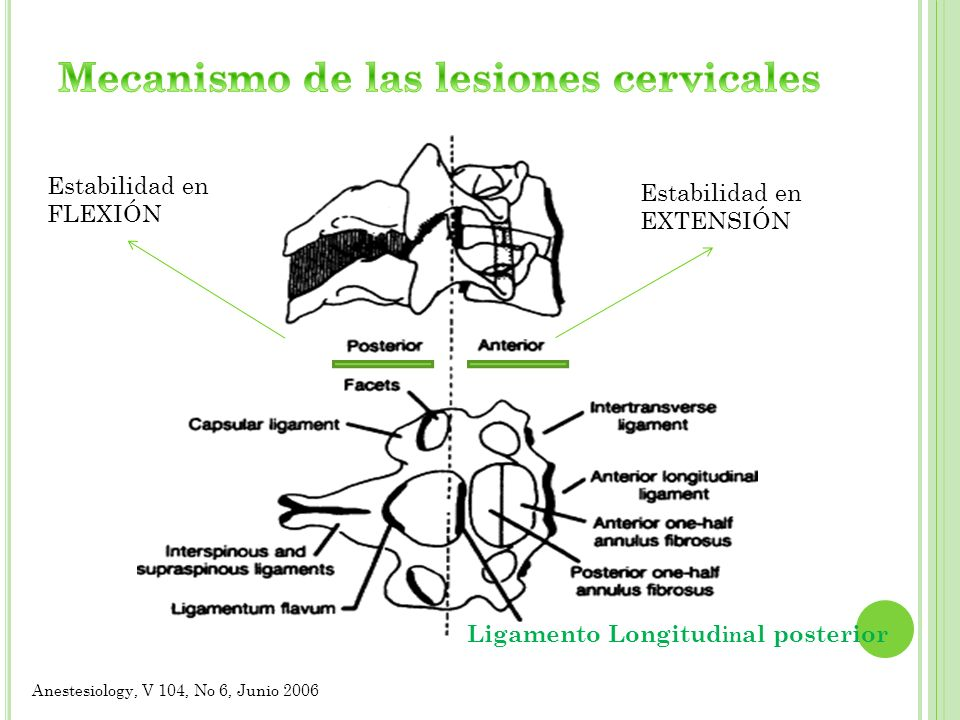 Mecanismo de las lesiones cervicales
