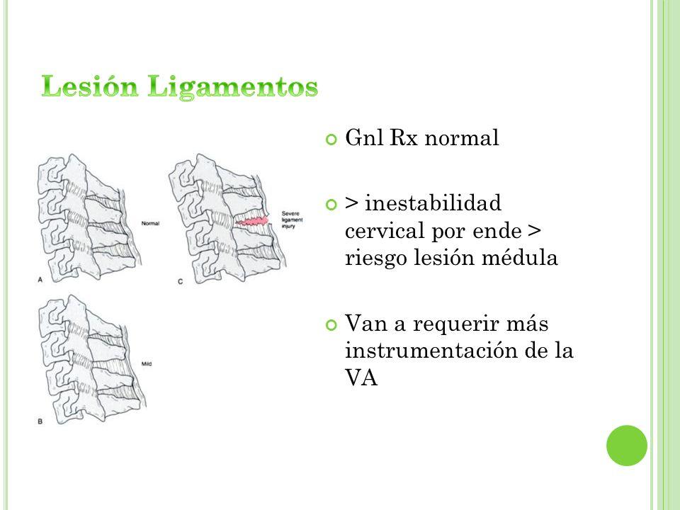Lesión Ligamentos Gnl Rx normal