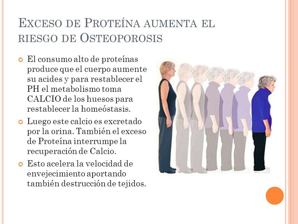 Exceso de Proteína aumenta el riesgo de Osteoporosis
