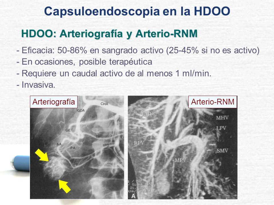 HDOO: Arteriografía y Arterio-RNM