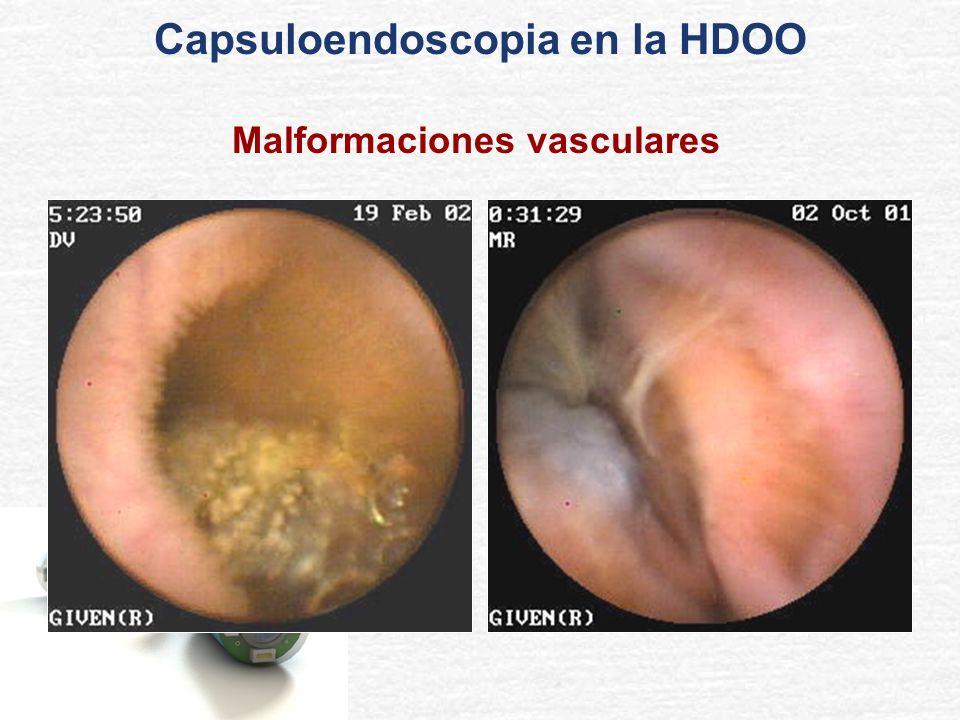 Capsuloendoscopia en la HDOO Malformaciones vasculares