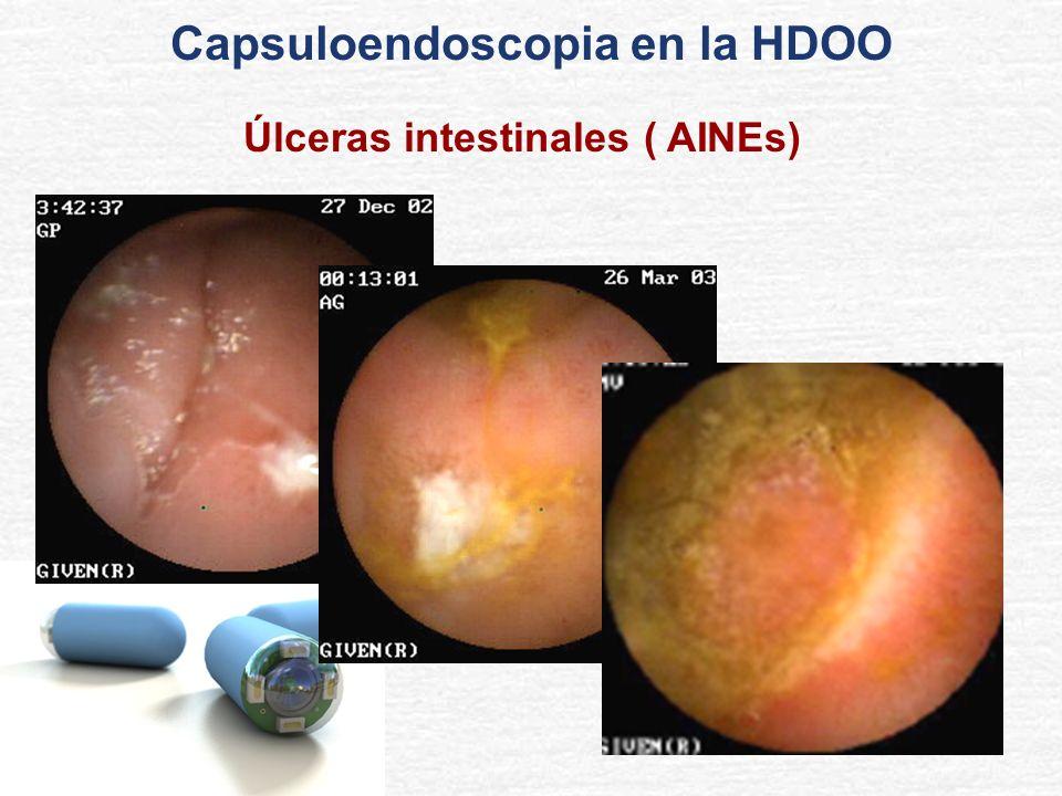 Capsuloendoscopia en la HDOO Úlceras intestinales ( AINEs)