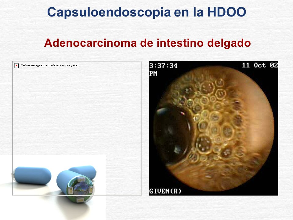 Capsuloendoscopia en la HDOO Adenocarcinoma de intestino delgado