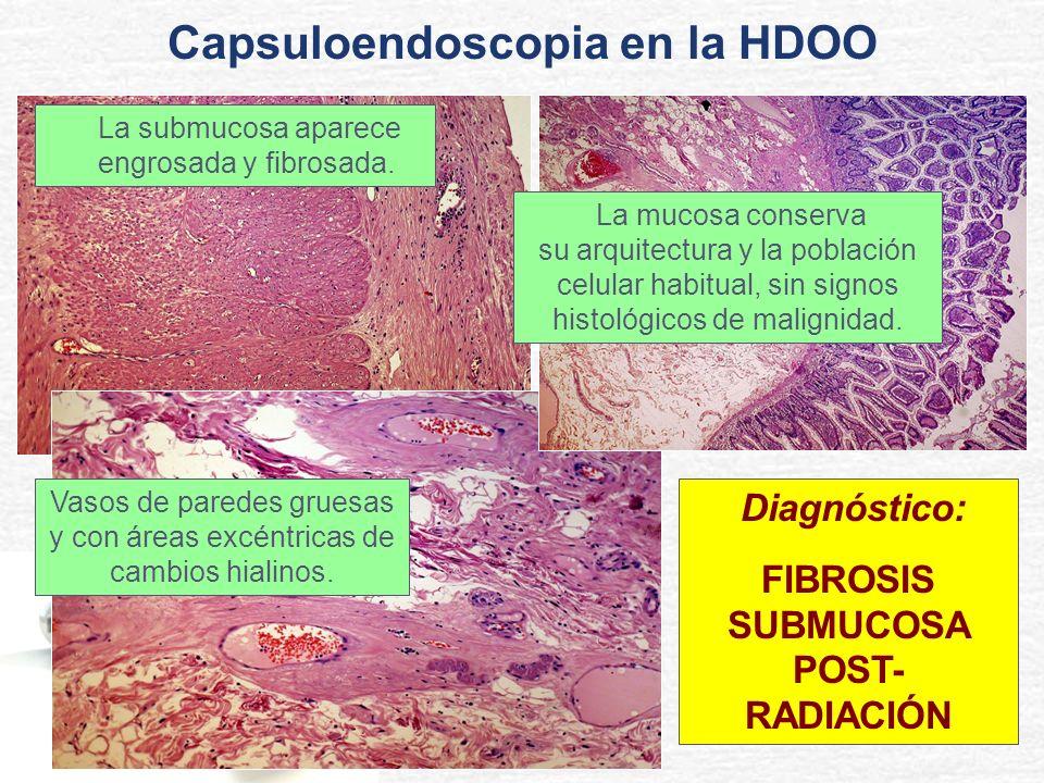 Capsuloendoscopia en la HDOO FIBROSIS SUBMUCOSA POST- RADIACIÓN