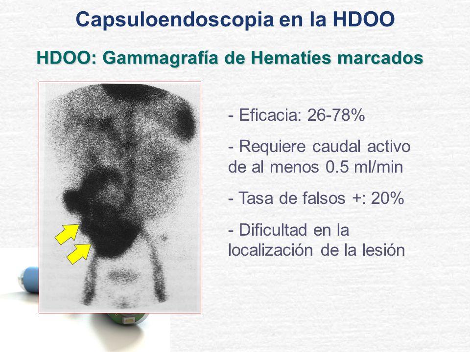 HDOO: Gammagrafía de Hematíes marcados