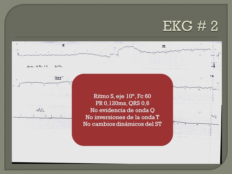 EKG # 2 Ritmo S, eje 10°, Fc 60 PR 0,120ms, QRS 0,6