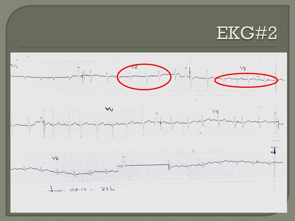EKG#2