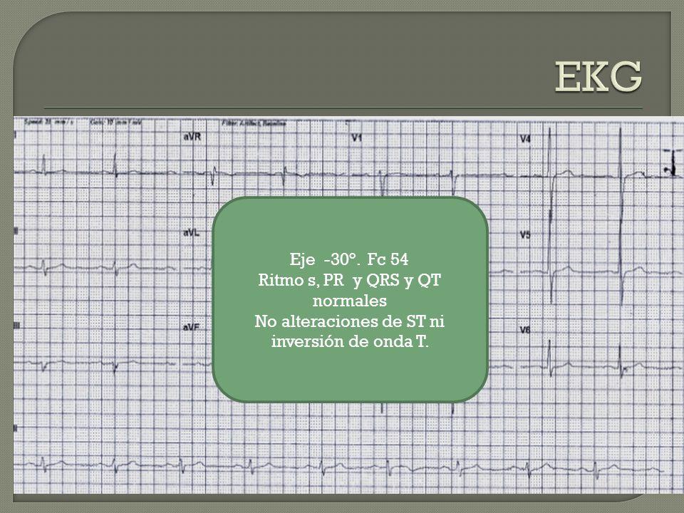 EKG Eje -30°. Fc 54 Ritmo s, PR y QRS y QT normales