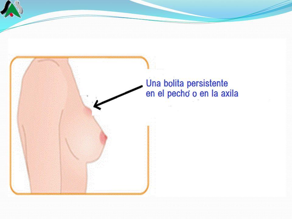 Si notas una bolita que generalmente no duele o cualquier cosa que creas que no es normal en tus pechos: irritación o hendiduras en la piel, o alguna masa en el área de abajo del brazo, etc., acude de inmediato a tu médico.
