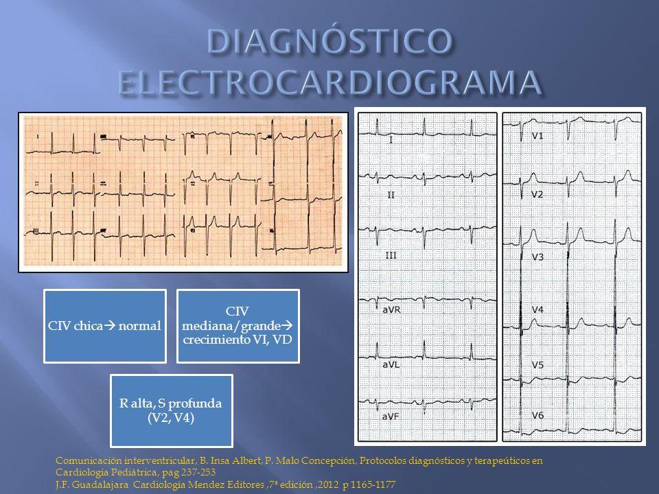 DIAGNÓSTICO ELECTROCARDIOGRAMA