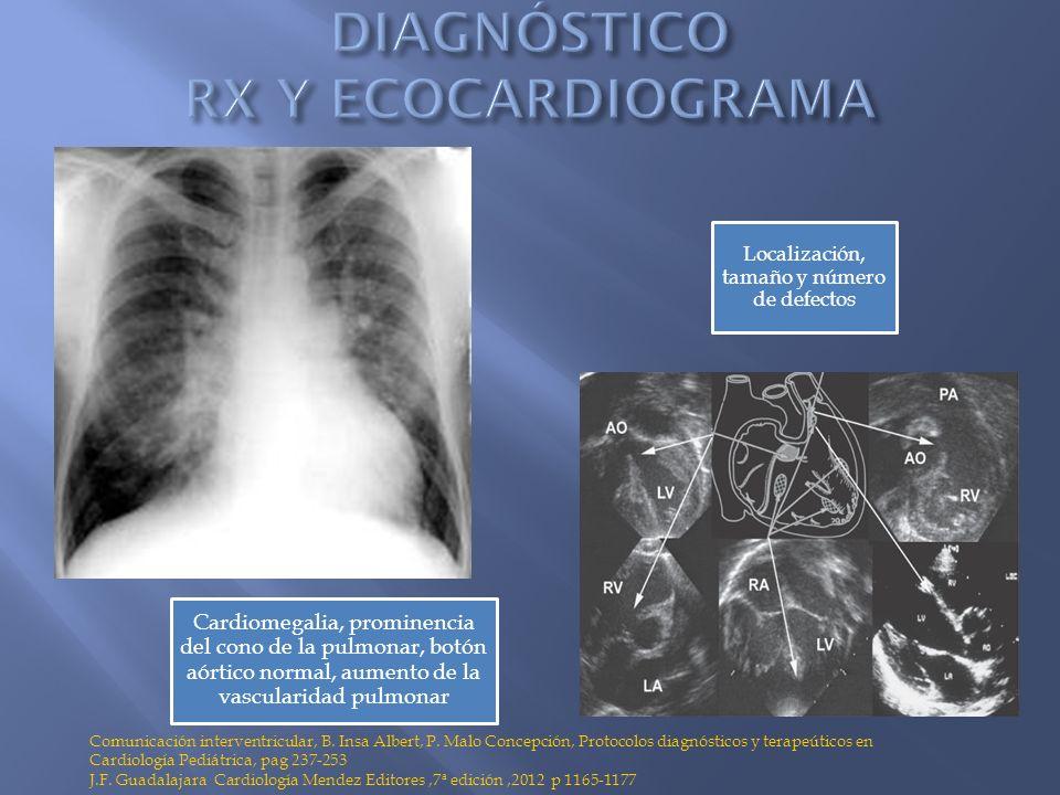 DIAGNÓSTICO RX Y ECOCARDIOGRAMA
