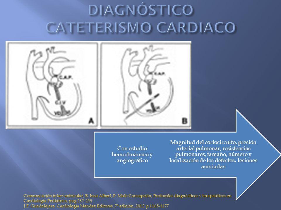 DIAGNÓSTICO CATETERISMO CARDIACO