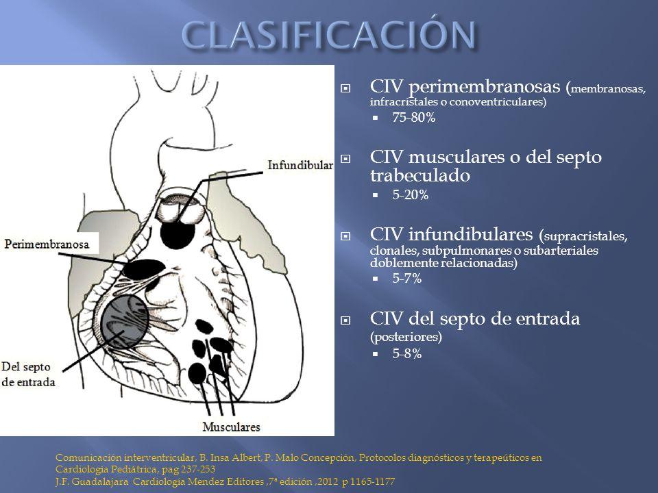 CLASIFICACIÓN CIV perimembranosas (membranosas, infracristales o conoventriculares) 75-80% CIV musculares o del septo trabeculado.