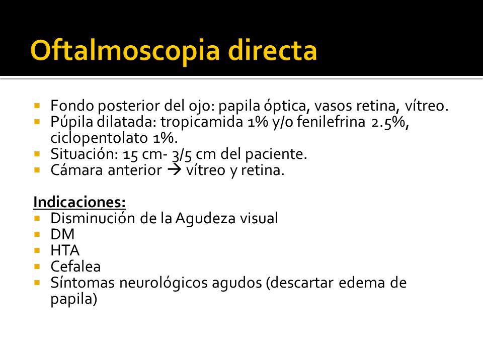 Oftalmoscopia directa
