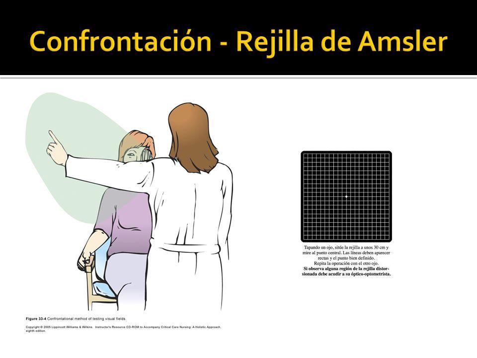 Confrontación - Rejilla de Amsler