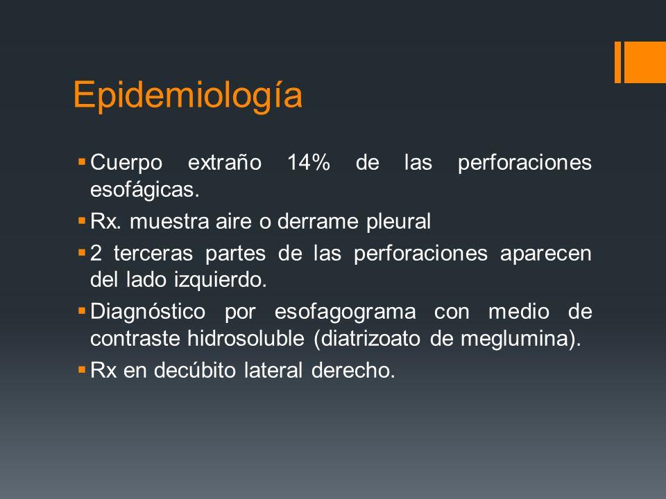 Epidemiología Cuerpo extraño 14% de las perforaciones esofágicas.
