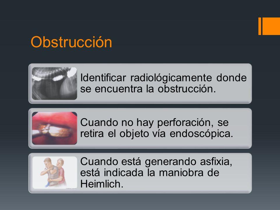 Obstrucción Identificar radiológicamente donde se encuentra la obstrucción. Cuando no hay perforación, se retira el objeto vía endoscópica.