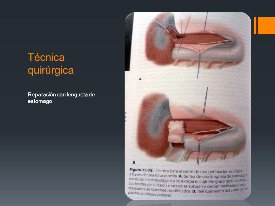 Técnica quirúrgica Reparación con lengüeta de estómago