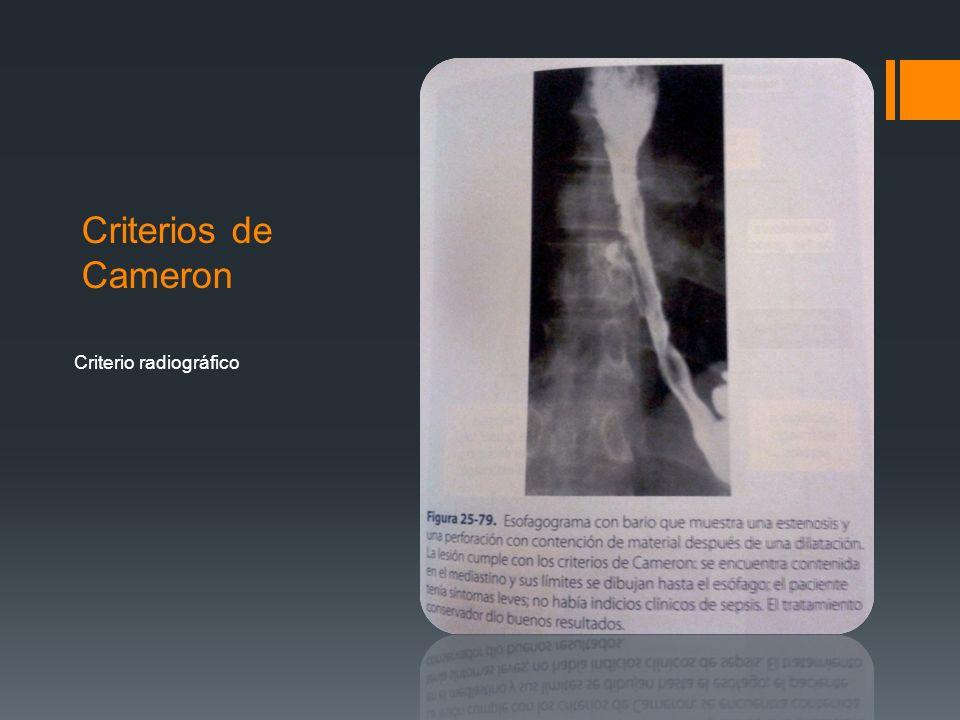 Criterios de Cameron Criterio radiográfico