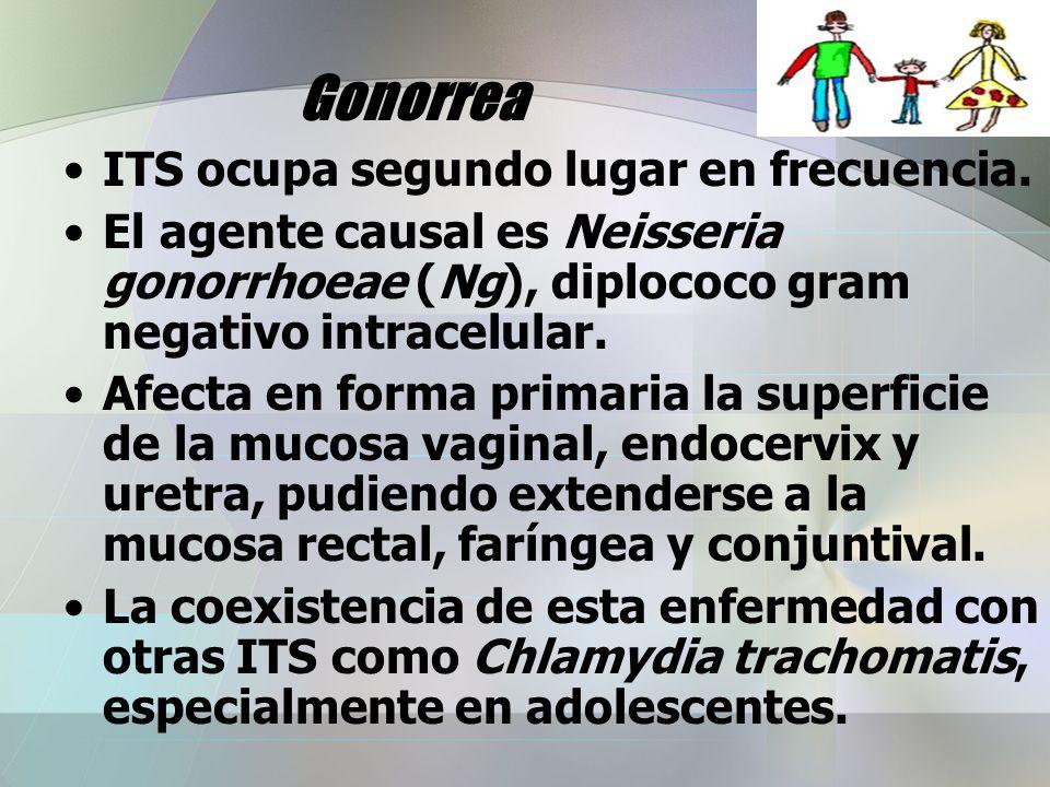 Gonorrea ITS ocupa segundo lugar en frecuencia.
