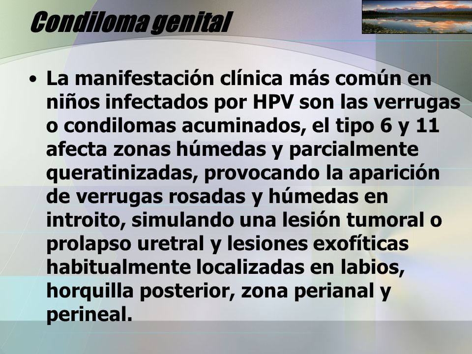 Condiloma genital