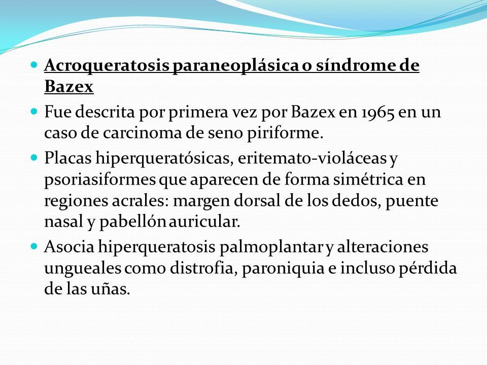 Acroqueratosis paraneoplásica o síndrome de Bazex