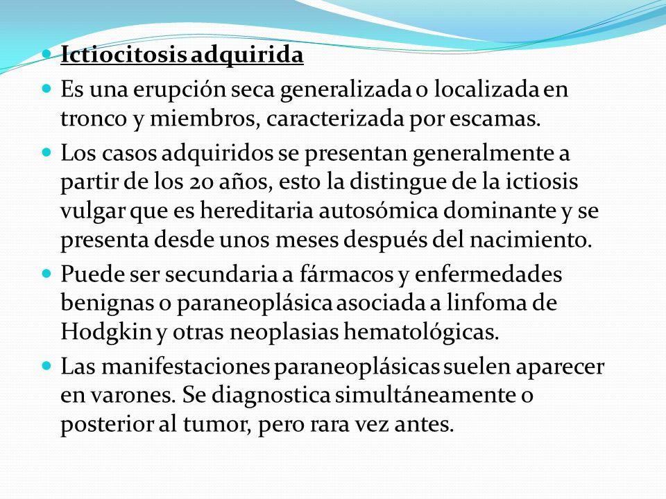 Ictiocitosis adquirida