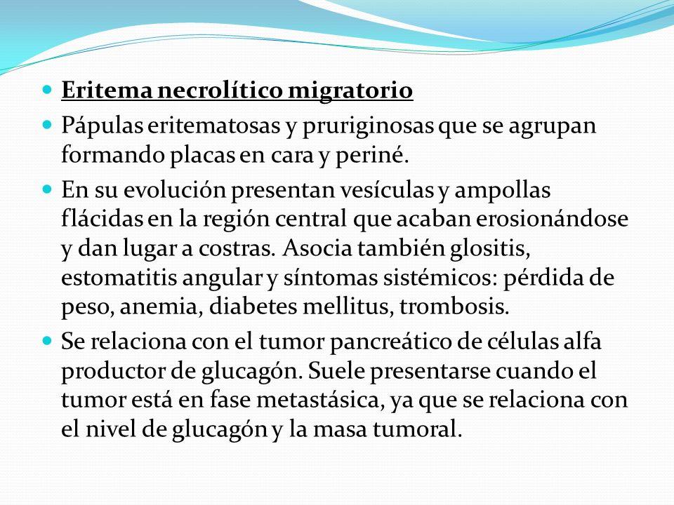 Eritema necrolítico migratorio
