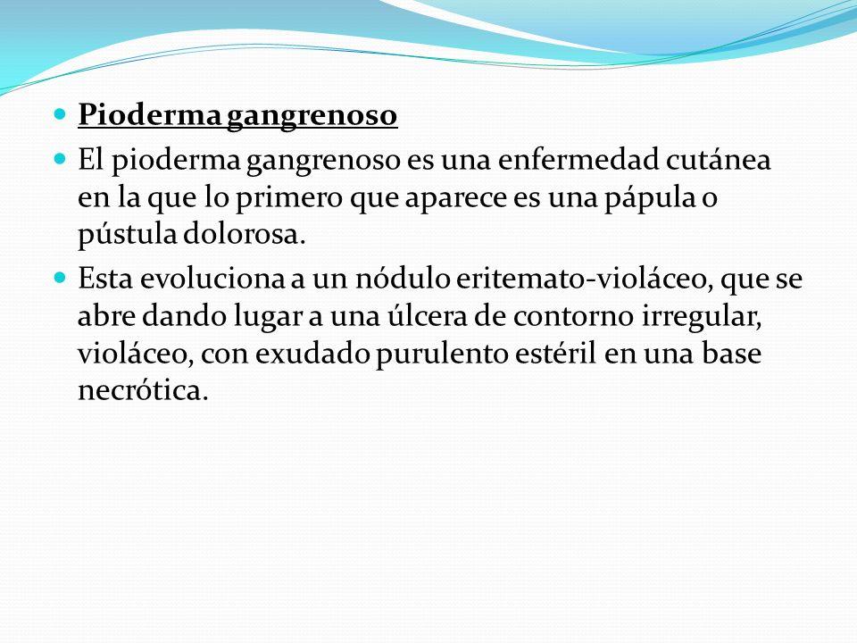 Pioderma gangrenoso El pioderma gangrenoso es una enfermedad cutánea en la que lo primero que aparece es una pápula o pústula dolorosa.