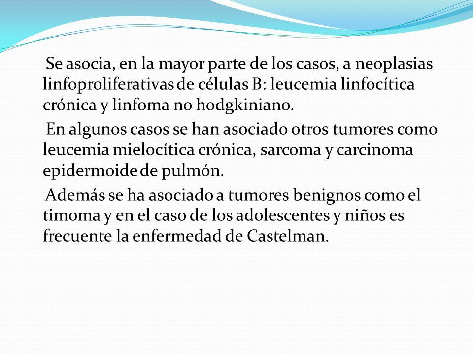Se asocia, en la mayor parte de los casos, a neoplasias linfoproliferativas de células B: leucemia linfocítica crónica y linfoma no hodgkiniano.