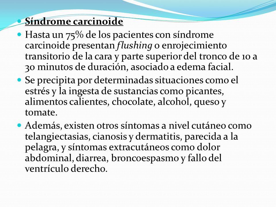 Síndrome carcinoide